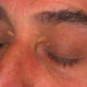 laserterapia-agolli-rimini