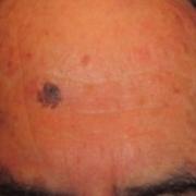lesioni-benigne-laserterapia-agolli-rimini