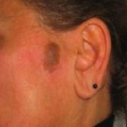 nei2-laserterapia-agolli-medicinaestetica