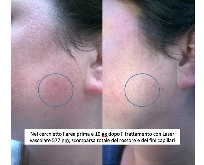 Glaucoma dopo trombosi