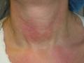 laser-vascolari-medicina-agolli