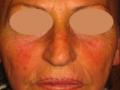 laser-vascolari2-medicina-agolli