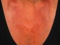 laser-vascolari3-medicina-agolli