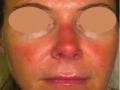 laser-vascolari4-medicina-agolli