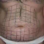Liposuzione-addome