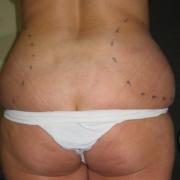 Liposuzione-fianchi