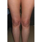 Mesoterapia4-cellulite-adiposita-localizzata-agolli