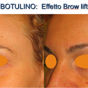 6botulino-brow lift