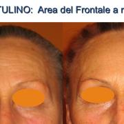 1botulino-area frontale a riposo