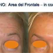 2botulino-area frontale in contrazione