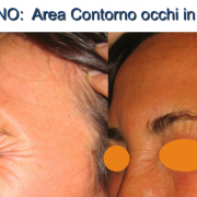 5botulino-contorno occhi in contrazione