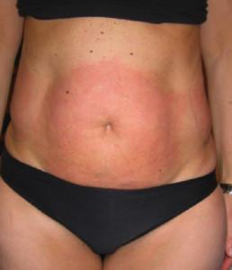 rossore-post-trattamento-agolli